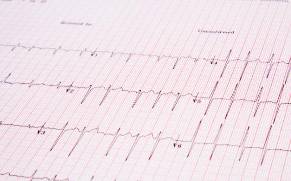 В Рязани в кардиодиспансере открыли кабинет для больных с хронической сердечной недостаточностью